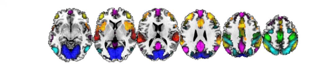 Neuroimatge