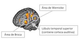 Localitzades les àrees cerebrals implicades en un dels principals símptomes de l'esquizofrènia, les al·lucinacions auditives