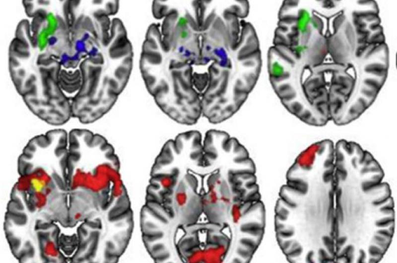 Identificats patrons de connexió al cervell relacionats amb una predisposició al TOC – Participa en l'estudi!